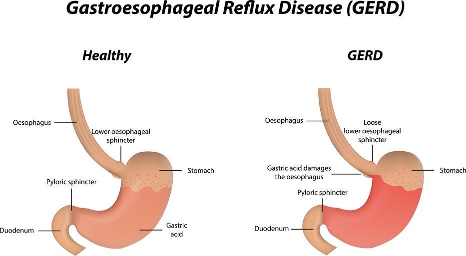 Gastroesophageal Reflux Disease Npc