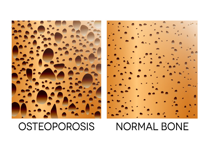Managing Osteoporosis - Considering the Overlooked Nutrients and Best Assessment Tools