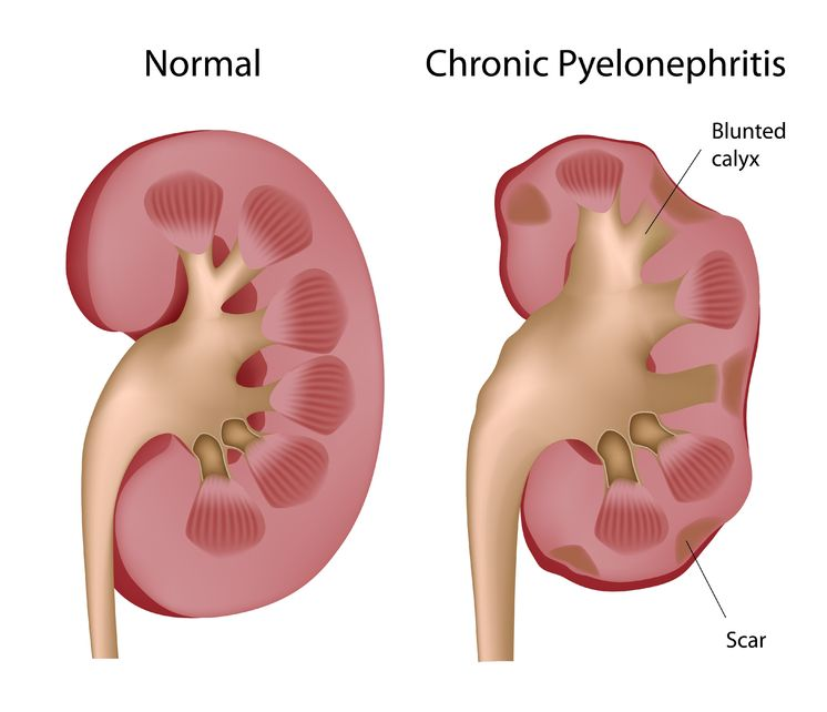 Kidney Infection (Pyelonephritis)