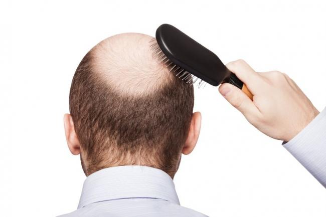 Alopecia - Natural Suppor