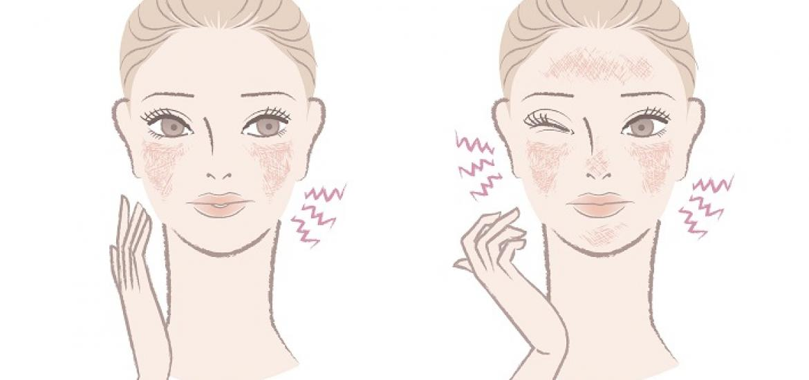 Rosacea - Naturopathic Approaches